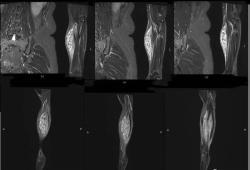 女性,發現左前臂腫塊10年,請診斷!