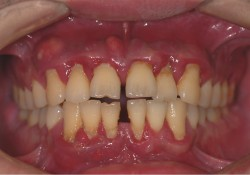 "J Clin Periodontol:<font color=""red"">牙</font><font color=""red"">周</font><font color=""red"">治疗</font>对超重患者脂肪因子生物标志物的影响"