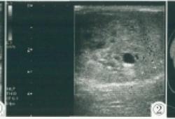 睾丸恶性卵黄囊瘤伴未成熟畸胎瘤超声表现1例