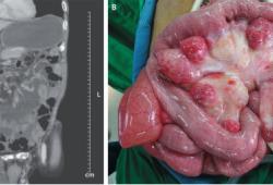 NEJM:空腸憩室所致的腸系膜扭轉-病例報道