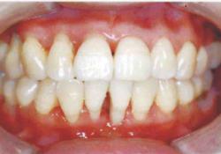 """J Periodontol:牙周炎患者<font color=""""red"""">牙龈</font>组织和<font color=""""red"""">牙龈</font>成纤维细胞中CSF-1和IL-34的表达"""