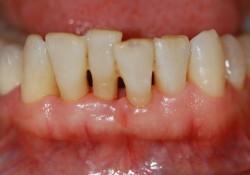 "J Periodontol:生姜6‐Shogaol可抑制结扎性牙周炎小鼠的牙槽<font color=""red"">骨</font>吸收"