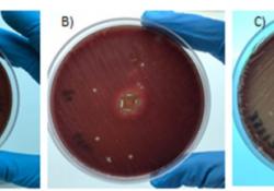 """J Periodontol:唾液<font color=""""red"""">乳</font>杆菌G60+菊粉能否更有效地治疗口臭和舌苔?"""