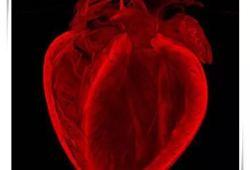 Eur Heart J:中国分叉病变又一顶级研究!陈绍良等文章