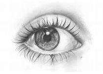 女,12岁,色素性青光眼病例