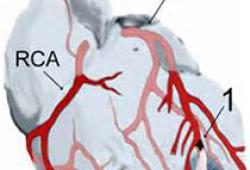 Eur Heart J:Alirocumab 对高龄冠心病患者预后的影响研究