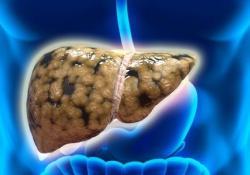"""Clin Gastroenterology H:非<font color=""""red"""">酒精</font>性脂肪肝患者的<font color=""""red"""">酒精</font>摄入与肝脂肪变性相关"""