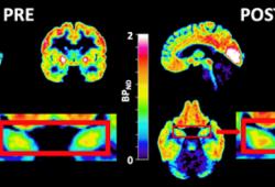 聚焦:麻醉药氯胺酮如何快速治疗抑郁症?迄今规模最大的研究揭开谜底