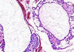 """Br J Cancer:瑞戈非尼:<font color=""""red"""">神经</font><font color=""""red"""">母细胞</font><font color=""""red"""">瘤</font>治疗的新选择"""