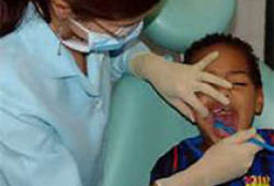 J Endod:Biodentine牙髓切断术治疗伴随复杂性冠折的外伤恒牙