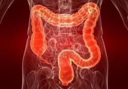 JCC: IL-6缺失会加剧IL-10缺乏小鼠的结肠炎并诱发全身性炎症反应
