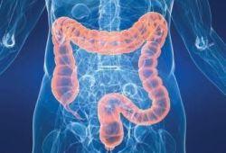 JCC: 阿片類藥物在炎癥性腸病中引起腸道營養不良并加劇結腸炎炎癥