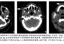 口腔颌面部肌内型结节性筋膜炎3例