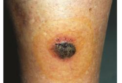 色素性单纯性汗腺棘皮瘤1例