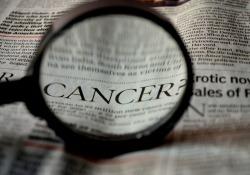 Nature Cancer:武大鐘波團隊報導:去泛素酶USP25可促進結直腸癌的發生