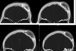 女性,額部腫塊10年,近幾年增大,時有頭暈,請診斷!