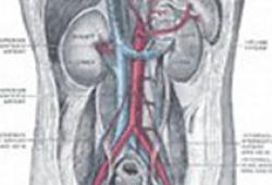 特利加壓素治療1型肝腎綜合癥:獲得FDA咨詢委員會的投票支持