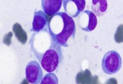 NEJM:印戒漿細胞-病例報道