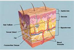 NEJM:羅氟司特乳膏局部治療可顯著改善銀屑病患者皮膚癥狀
