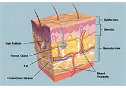 "NEJM:罗氟司特<font color=""red"">乳</font>膏局部治疗可显著改善银屑病患者皮肤症状"