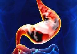 """Gastric Cancer: <font color=""""red"""">糖尿</font><font color=""""red"""">病</font><font color=""""red"""">与</font>胃癌的风险增加有关"""