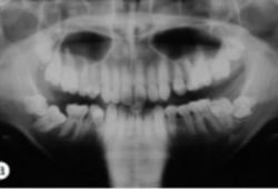 遗传性牙龈纤维瘤病牙周-正畸联合治疗1例