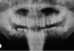 """遗传性牙龈<font color=""""red"""">纤维</font><font color=""""red"""">瘤</font>病牙周-正畸联合治疗1例"""
