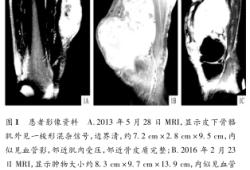 反復局部復發高齡惡性纖維組織細胞瘤1例