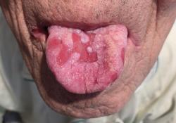 "NEJM:巨细胞病毒感染引起的<font color=""red"">舌</font>溃疡-病例报道"