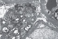 NEJM:肾脏中的斑马体-病例报道