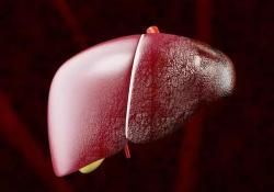 "AP&T: 终末期<font color=""red"">肝病</font>模型(MELD)仍然是肝硬化和重度腹水患者死亡率的最佳预测指标"