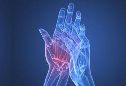 AP&T:?定期使用質子泵抑制劑和女性類風濕性關節炎的風險