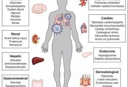 新冠肺炎遠比預期復雜,新冠病毒幾乎無差別攻擊人體各系統!