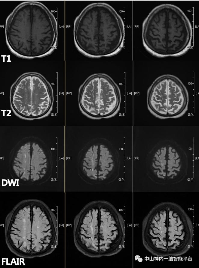 一个病例,了解3种「分水岭脑梗死」的临床特点