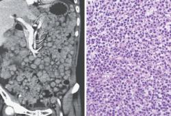 NEJM:轉移性透明細胞肉瘤-病例報道