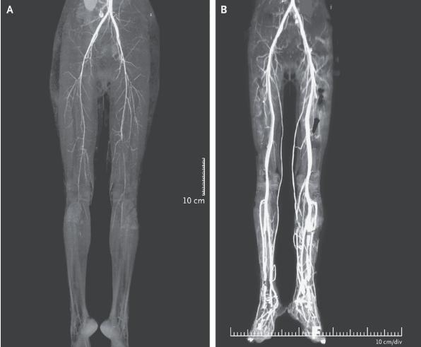 NEJM:灼烧样腿痛-病例报道