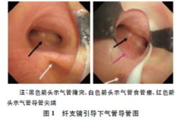 纤维支气管镜引导气管导管定位治疗食管闭锁伴气管食管瘘一例