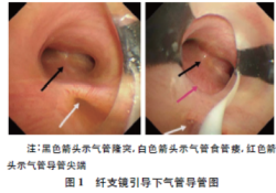 """纤维支气管镜引导气管导管定位治疗食管闭锁<font color=""""red"""">伴</font>气管食管瘘一例"""