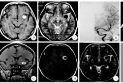 完全血栓化的大脑中动脉动脉瘤2例