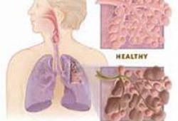 JAMA Intern Med:美國最大規模血清學調查結果出爐,實際感染人數應高出6-24倍
