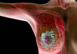 Clini Cancer Res:PD-L1表达与三阴性乳腺癌新辅助化疗预后的相关性