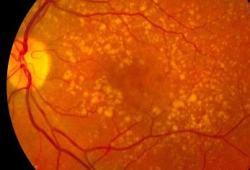 氘代多不饱和脂肪酸(D-PUFA)治疗老年黄斑变性:前景光明
