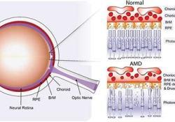 Beovu治疗湿性AMD患者:相比于aflibercept更快地实现了液体控制