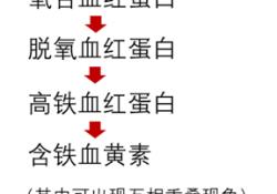 "不同<font color=""red"">脑出血</font>时期MRI表现,你掌握了吗?"