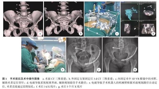 虚拟现实技术联合电磁导航手术机器人辅助治疗复杂骨盆骨折一例