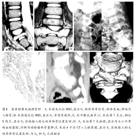 腹直肌旁入路治疗儿童S1动脉瘤样骨囊肿1例