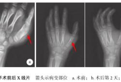 手部掌骨旺炽性反应性骨膜炎二例