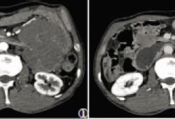 肠系膜侵袭性纤维瘤病1例