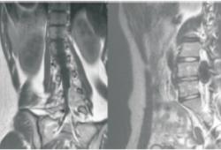 黑色素性神经鞘瘤2例报道