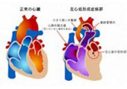 """JAHA:扩张型心肌病患儿心率升高与<font color=""""red"""">生存</font><font color=""""red"""">率</font>的关系"""